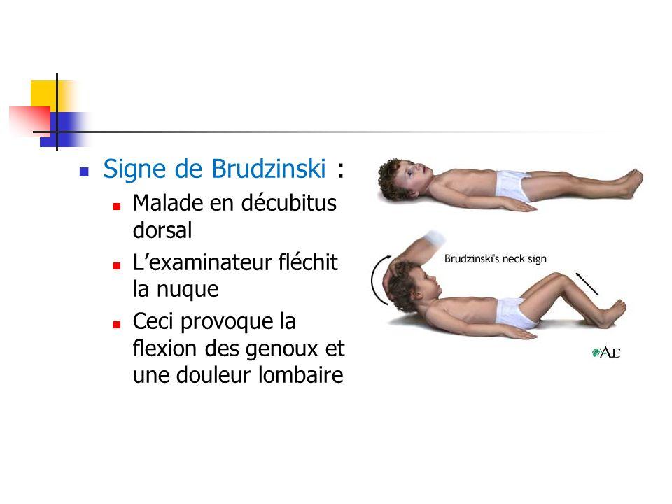 Signe de Brudzinski : Malade en décubitus dorsal Lexaminateur fléchit la nuque Ceci provoque la flexion des genoux et une douleur lombaire