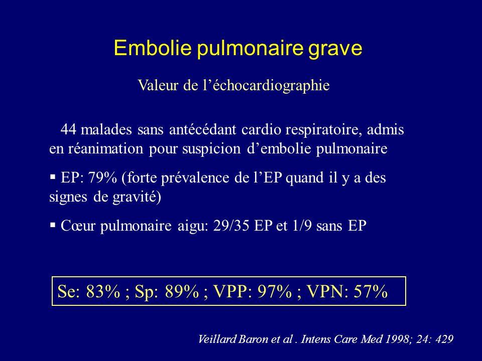 Embolie pulmonaire grave Valeur de léchocardiographie 44 malades sans antécédant cardio respiratoire, admis en réanimation pour suspicion dembolie pul