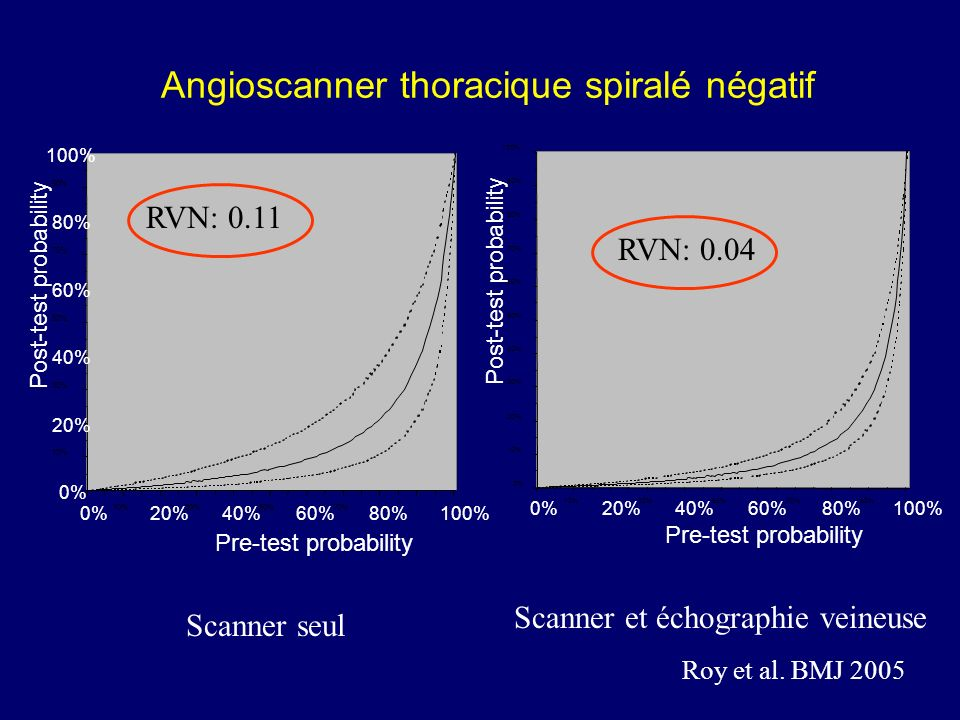Angioscanner thoracique spiralé négatif 0% 10% 20% 30% 40% 50% 60% 70% 80% 90% 100% 0% 10% 20% 30% 40% 50% 60% 70% 80%100% Pre-test probability Post-t