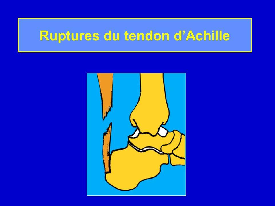 Traumatismes du sport, dans la majorité des cas Le siège est le plus souvent à distance de linsertion sur le calcaneum (4 à 6 cm) Ruptures souvent effilochées