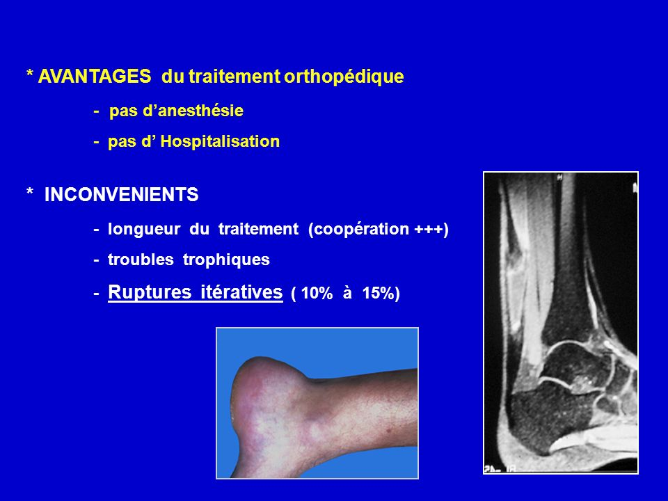 * AVANTAGES du traitement orthopédique - pas danesthésie - pas d Hospitalisation * INCONVENIENTS - longueur du traitement (coopération +++) - troubles