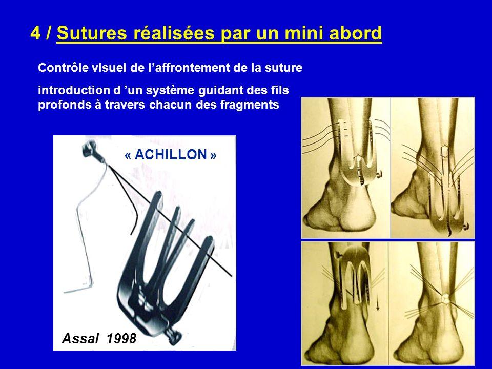 4 / Sutures réalisées par un mini abord Contrôle visuel de laffrontement de la suture introduction d un système guidant des fils profonds à travers ch