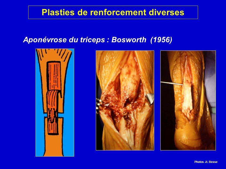 Aponévrose du triceps : Bosworth (1956) Plasties de renforcement diverses Photos JL Besse