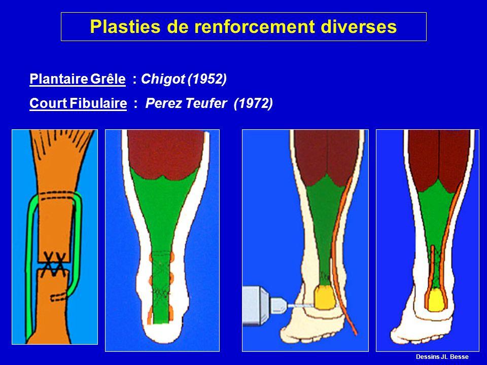 Plantaire Grêle : Chigot (1952) Court Fibulaire : Perez Teufer (1972) CHIGOTPEREZ TEUFER Plasties de renforcement diverses Dessins JL Besse