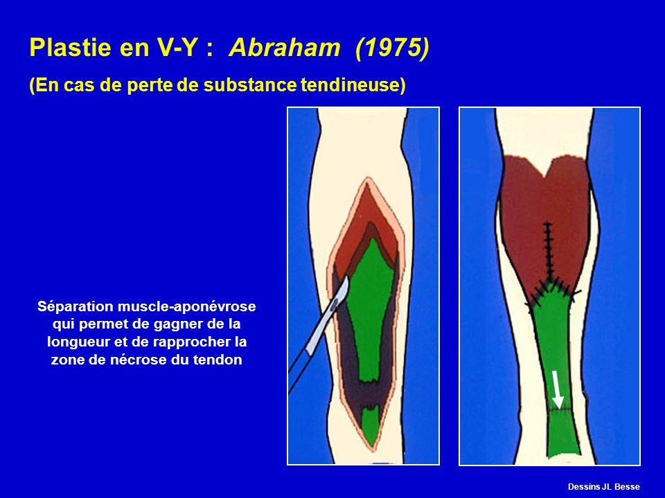 Plastie en V-Y : Abraham (1975) (En cas de perte de substance tendineuse) Séparation muscle-aponévrose qui permet de gagner de la longueur et de rappr