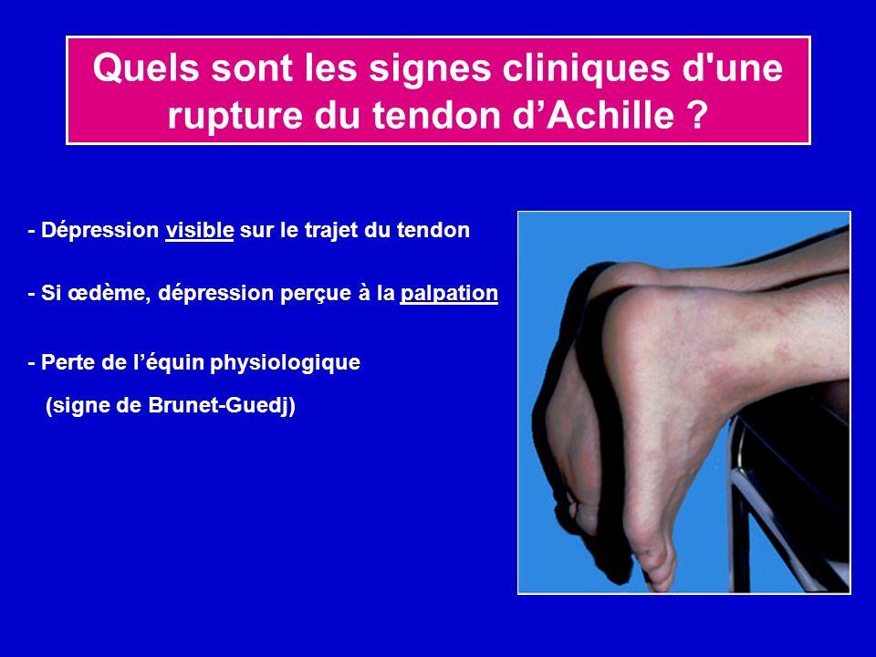 Quels sont les signes cliniques d'une rupture du tendon dAchille ? - Dépression visible sur le trajet du tendon - Si œdème, dépression perçue à la pal