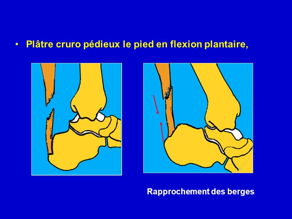 Plâtre cruro pédieux le pied en flexion plantaire, Changement après 4 à 6 semaines contre un plâtre de marche sans flexion plantaire Reprise progressive de l appui (avec talon surélevé et dégressif durant 4 semaines) Rééducation du triceps