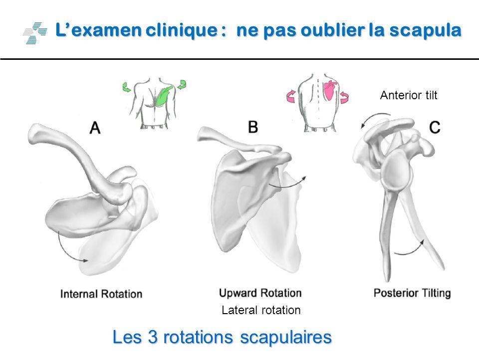 Lexamen clinique : ne pas oublier la scapula Les 3 rotations scapulaires Anterior tilt Lateral rotation
