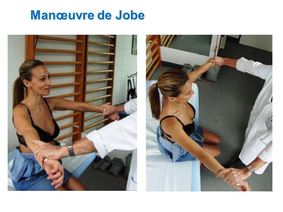 Manœuvre de Jobe