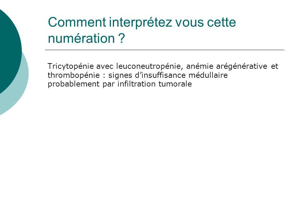 Comment interprétez vous cette numération ? Tricytopénie avec leuconeutropénie, anémie arégénérative et thrombopénie : signes dinsuffisance médullaire