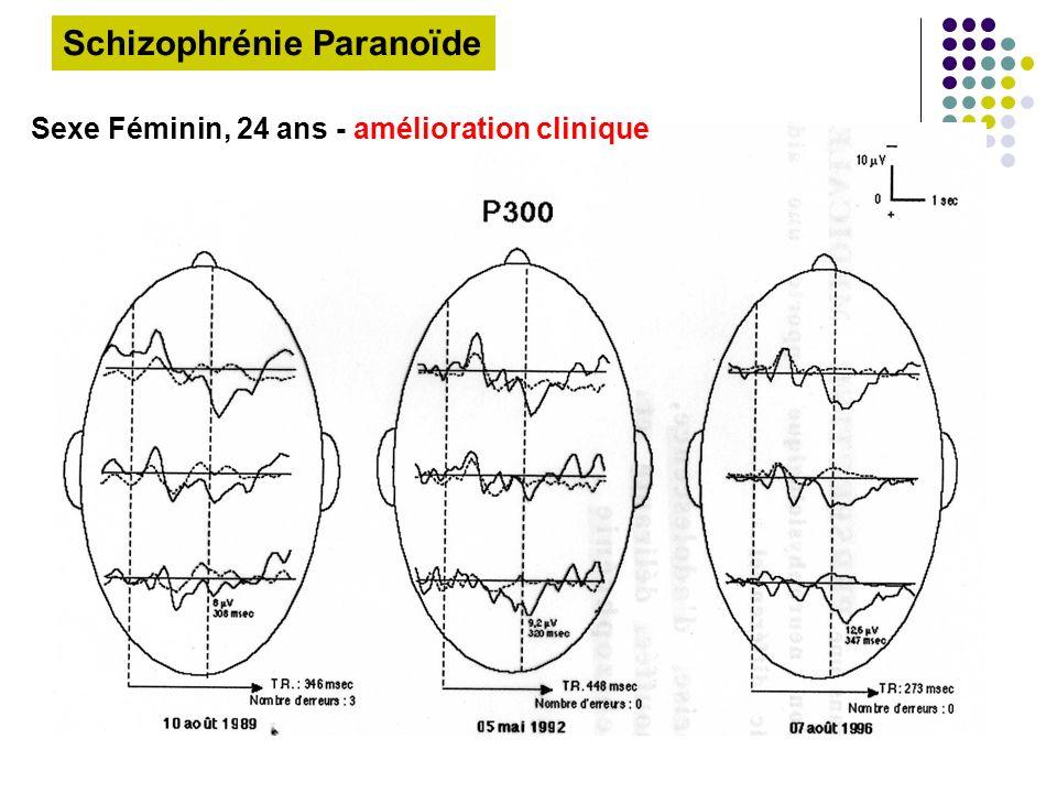 Sexe Féminin, 24 ans - amélioration clinique Schizophrénie Paranoïde
