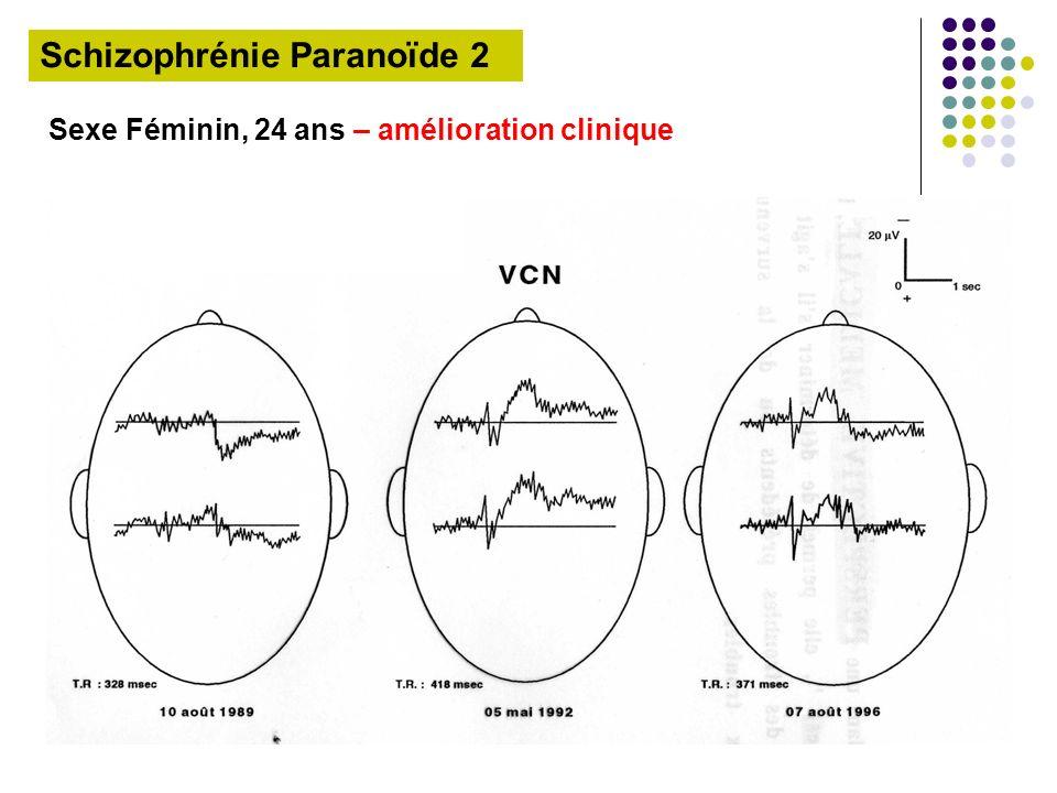 Schizophrénie Paranoïde 2 Sexe Féminin, 24 ans – amélioration clinique