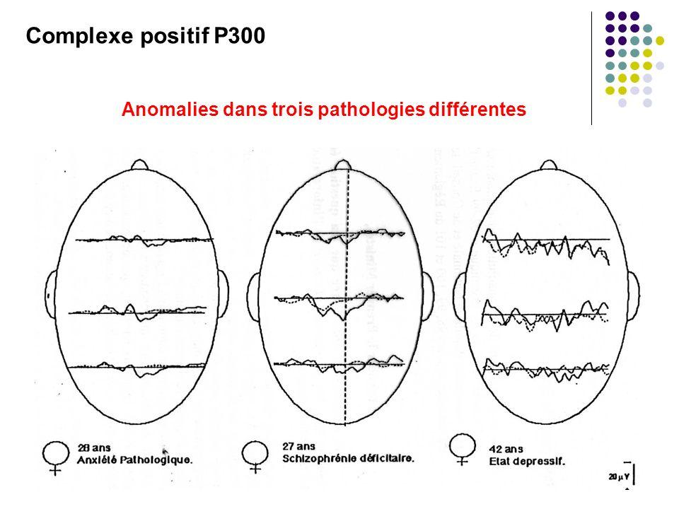 Complexe positif P300 Anomalies dans trois pathologies différentes