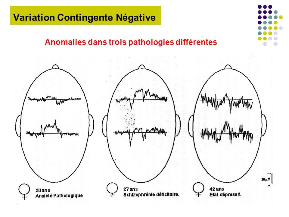Variation Contingente Négative Anomalies dans trois pathologies différentes