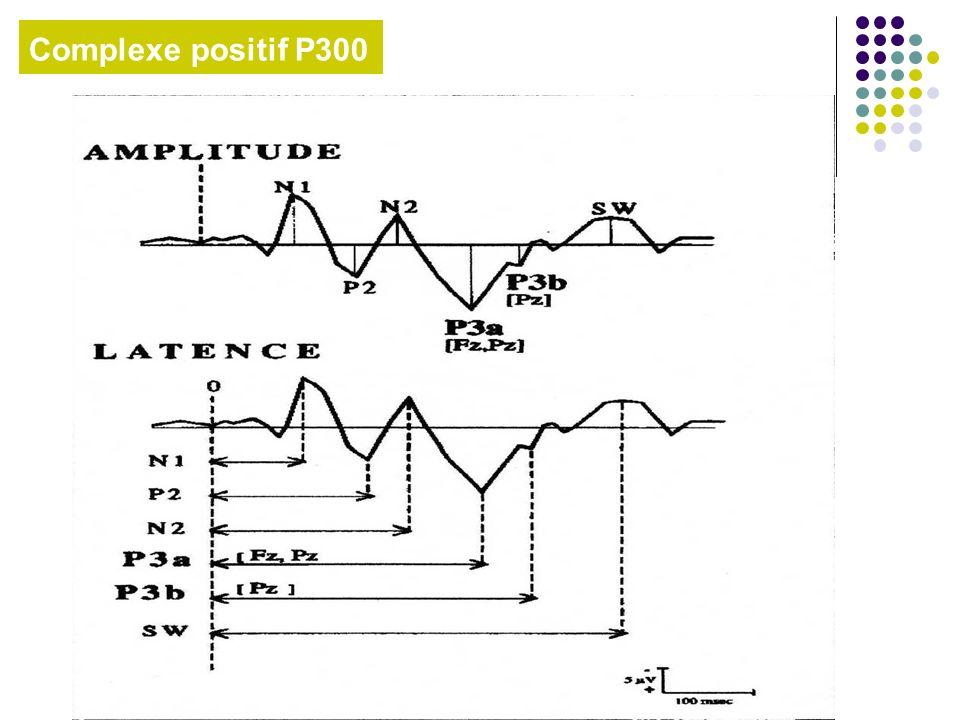 Variation Contingente Négative (VCN)