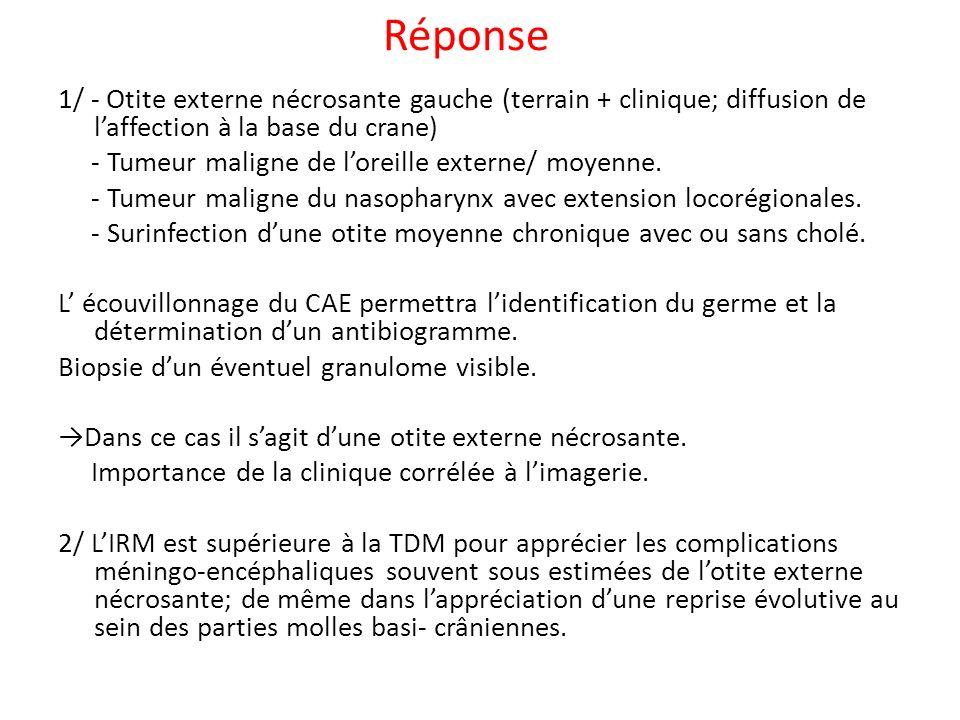 Réponse 1/ - Otite externe nécrosante gauche (terrain + clinique; diffusion de laffection à la base du crane) - Tumeur maligne de loreille externe/ moyenne.