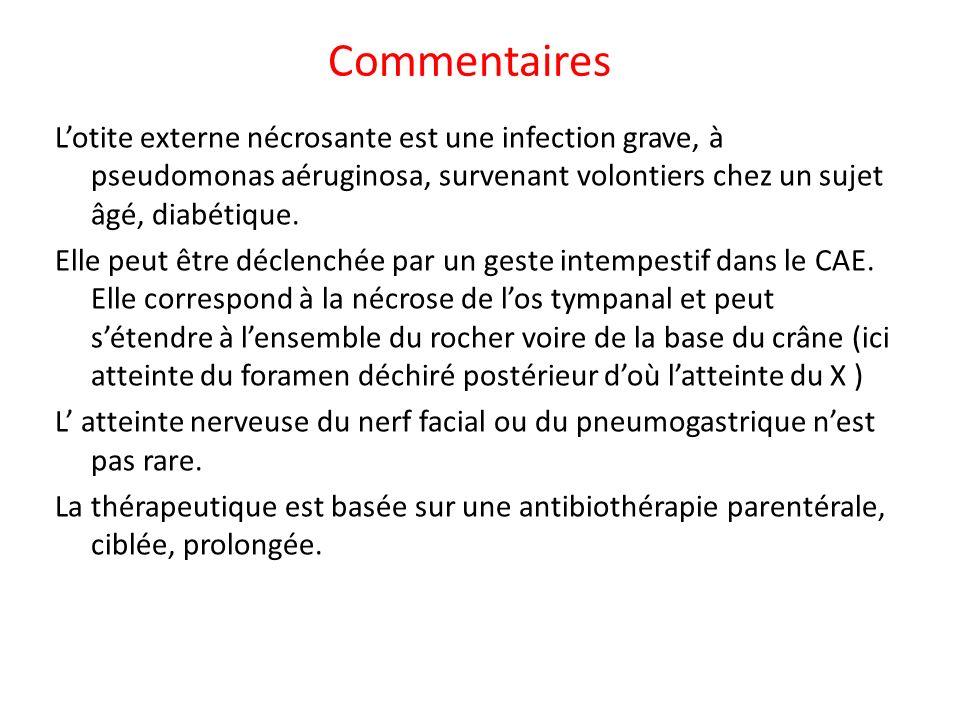 Commentaires Lotite externe nécrosante est une infection grave, à pseudomonas aéruginosa, survenant volontiers chez un sujet âgé, diabétique.