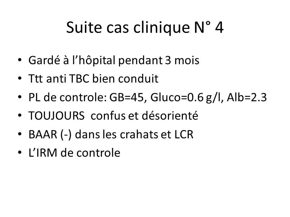 Suite cas clinique N° 4 Gardé à lhôpital pendant 3 mois Ttt anti TBC bien conduit PL de controle: GB=45, Gluco=0.6 g/l, Alb=2.3 TOUJOURS confus et dés