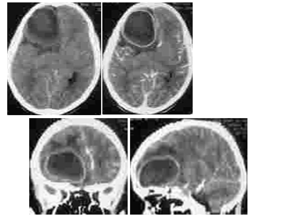 Cas clinique N°6 M eme HS, 54 ans, originaire de sousse Pas dATCDS notables Hospitalisée pour œsophagite fongique, céphalée holo crânienne depuis 6 semaines, dysphonie et altération de létat général Examen: cachectique, lésions bourgeonnante, ulcérée au niveau de la joue Examen ORL: cavum comblé et augmenté de taille, biopsie montre laspect dune infection fongique LIRM cérébrale
