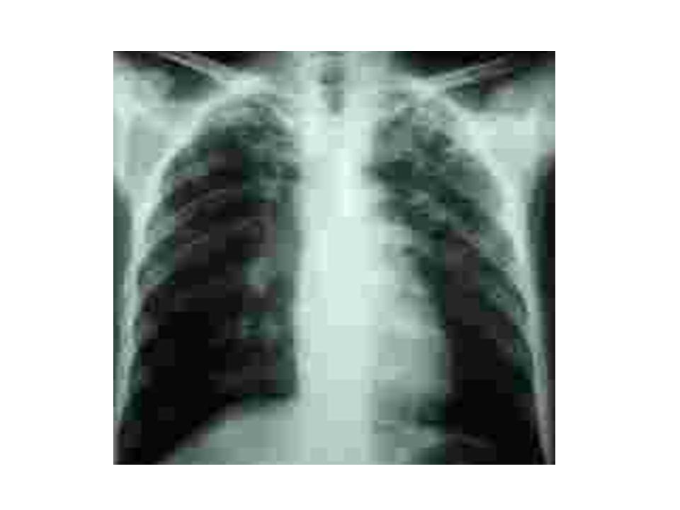 Suite cas clinique N° 4 Gardé à lhôpital pendant 3 mois Ttt anti TBC bien conduit PL de controle: GB=45, Gluco=0.6 g/l, Alb=2.3 TOUJOURS confus et désorienté BAAR (-) dans les crahats et LCR LIRM de controle