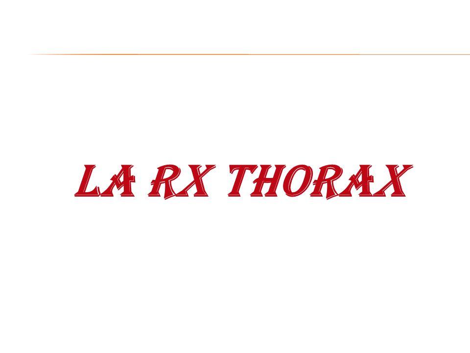 LA RX THORAX