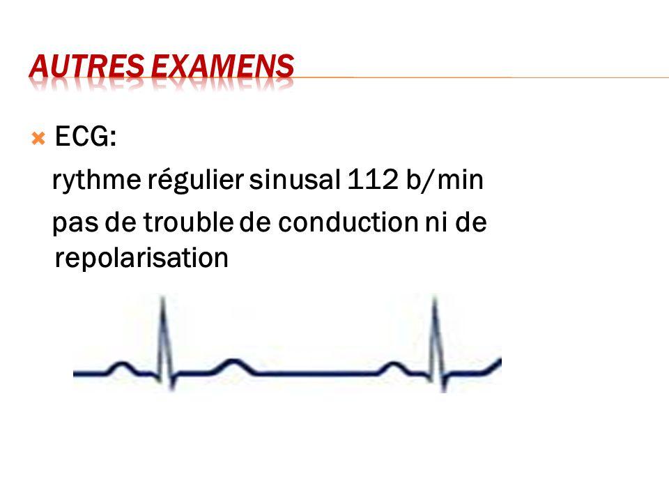 ECG: rythme régulier sinusal 112 b/min pas de trouble de conduction ni de repolarisation