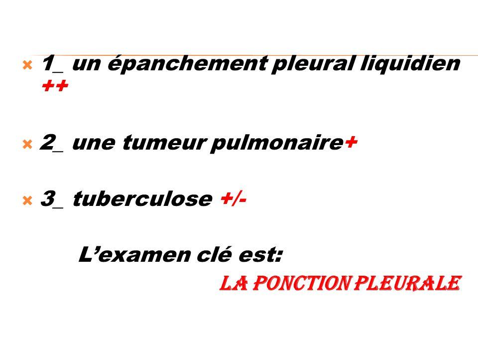 1_ un épanchement pleural liquidien ++ 2_ une tumeur pulmonaire+ 3_ tuberculose +/- Lexamen clé est: la ponction pleurale