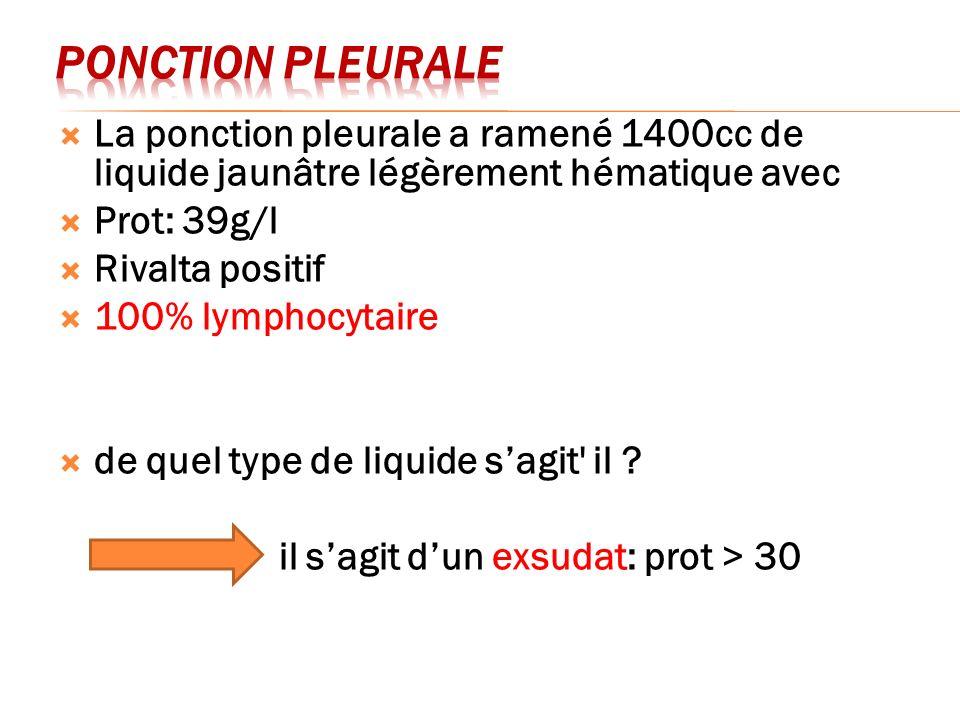 La ponction pleurale a ramené 1400cc de liquide jaunâtre légèrement hématique avec Prot: 39g/l Rivalta positif 100% lymphocytaire de quel type de liqu