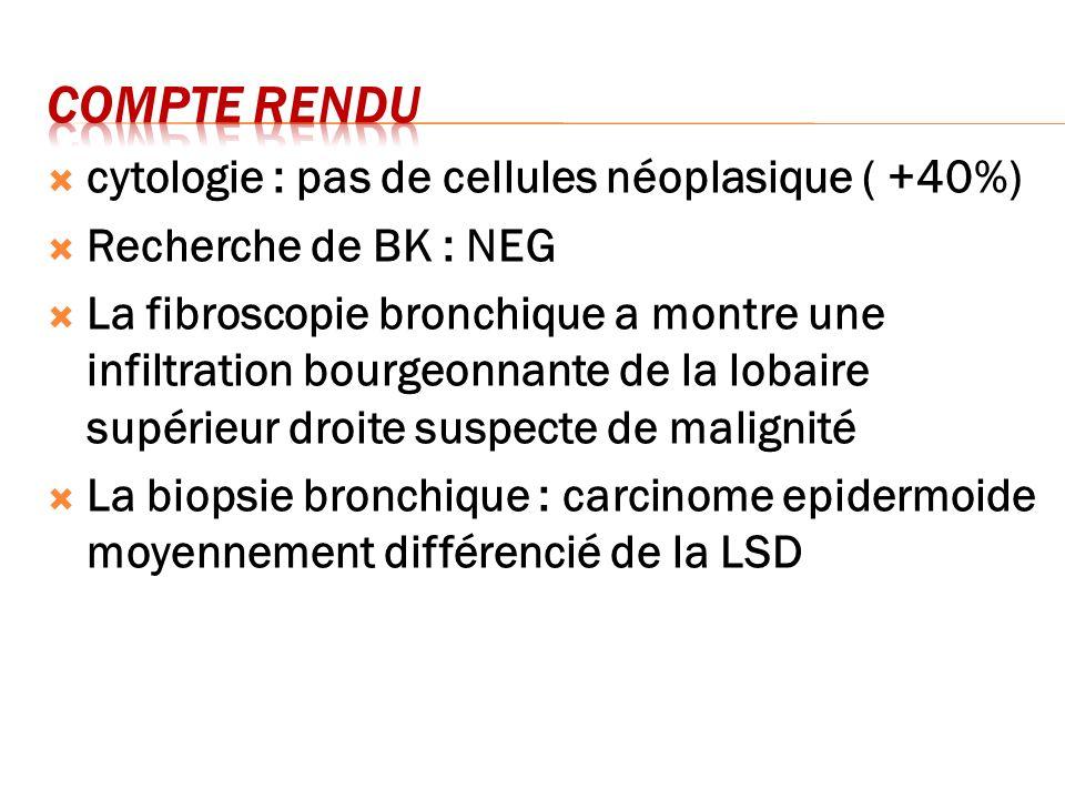 cytologie : pas de cellules néoplasique ( +40%) Recherche de BK : NEG La fibroscopie bronchique a montre une infiltration bourgeonnante de la lobaire
