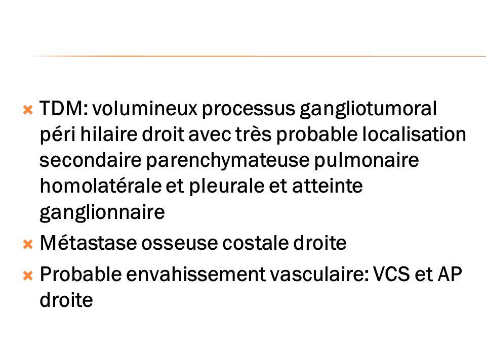 TDM: volumineux processus gangliotumoral péri hilaire droit avec très probable localisation secondaire parenchymateuse pulmonaire homolatérale et pleu