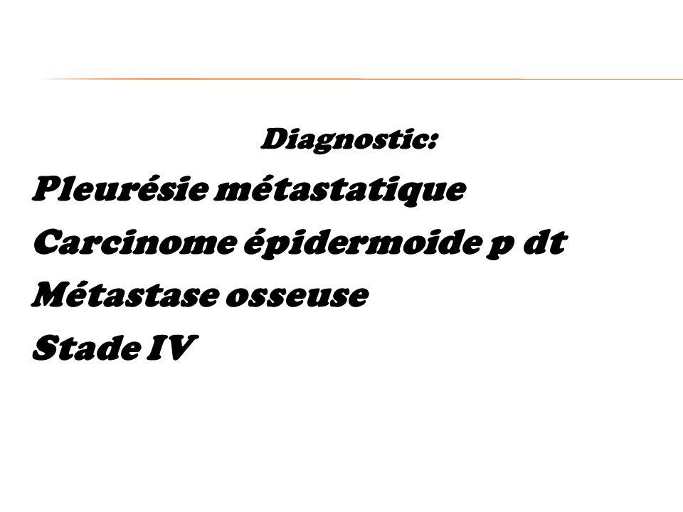 Diagnostic: Pleurésie métastatique Carcinome épidermoide p dt Métastase osseuse Stade IV