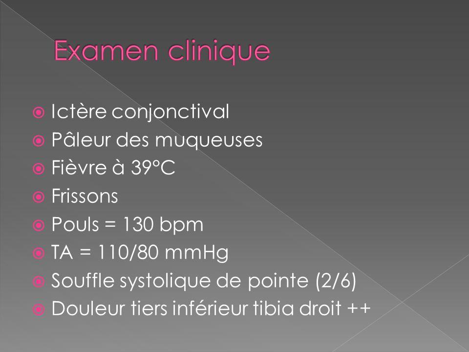Ictère conjonctival Pâleur des muqueuses Fièvre à 39°C Frissons Pouls = 130 bpm TA = 110/80 mmHg Souffle systolique de pointe (2/6) Douleur tiers inférieur tibia droit ++