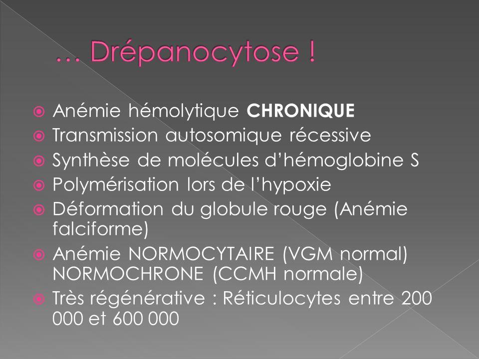 Anémie hémolytique CHRONIQUE Transmission autosomique récessive Synthèse de molécules dhémoglobine S Polymérisation lors de lhypoxie Déformation du globule rouge (Anémie falciforme) Anémie NORMOCYTAIRE (VGM normal) NORMOCHRONE (CCMH normale) Très régénérative : Réticulocytes entre 200 000 et 600 000