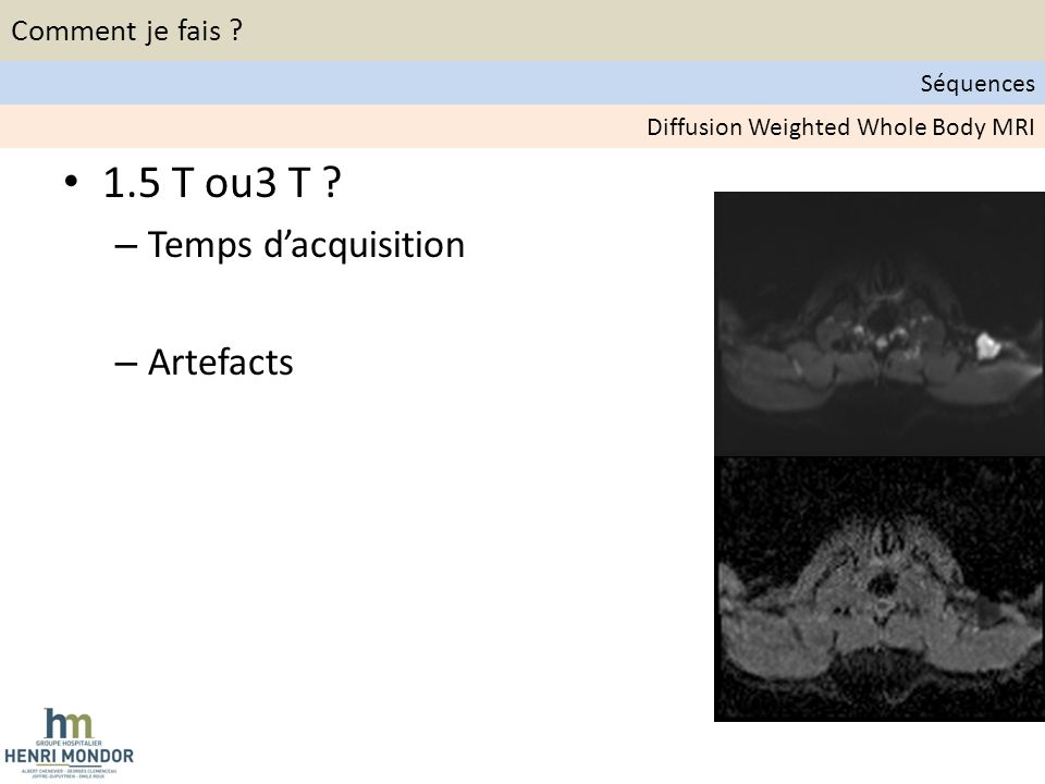 1.5 T ou3 T .– Temps dacquisition – Artefacts Diffusion Weighted Whole Body MRI Comment je fais .