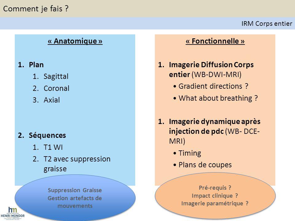 Principes de la diffusion Composante perfusive Diffusion moléculaire Diffusion Weighted Whole Body MRI Comment je fais .