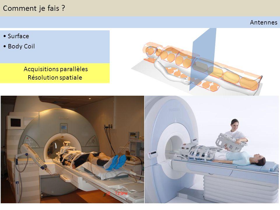 Principes de la diffusion Diffusion moléculaire Microcirculation Composante perfusive b<100s/mm 2 : composante perfusive non négligeable b>100s/mm 2 : composante perfusive négligeable Diffusion Weighted Whole Body MRI Comment je fais .