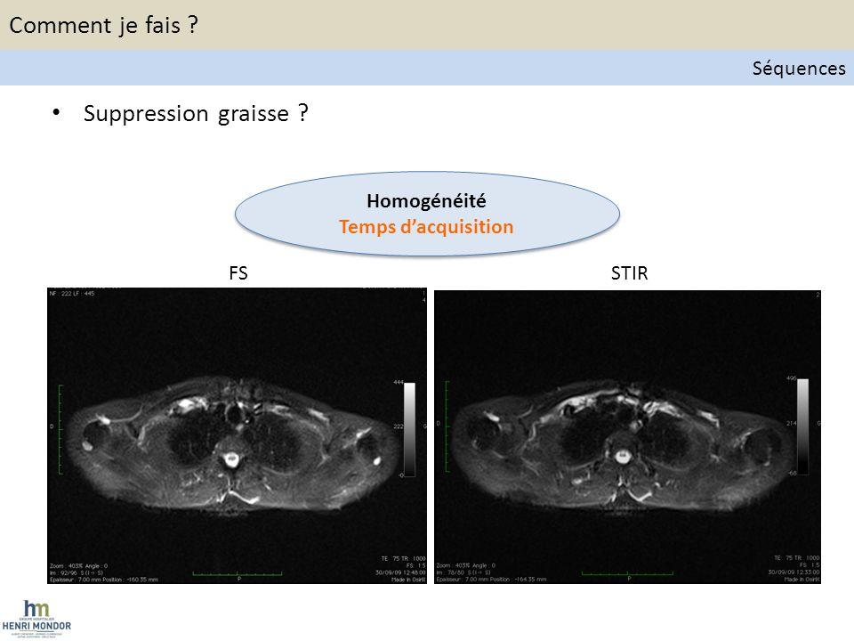 Detection – Staging ganglionnaire CT ADC b800 b50 PET PET/CT 94% des ggs détectés en WB-DWI-MRI et TEP TDM 89% des aires ggs positives en TEP TDM ont diffusion restreinte Applications cliniques WB-DWI-MRI et Lymphome