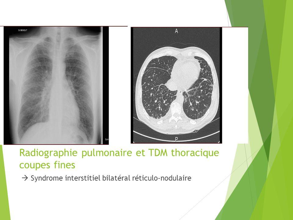 Radiographie pulmonaire et TDM thoracique coupes fines Syndrome interstitiel bilatéral réticulo-nodulaire