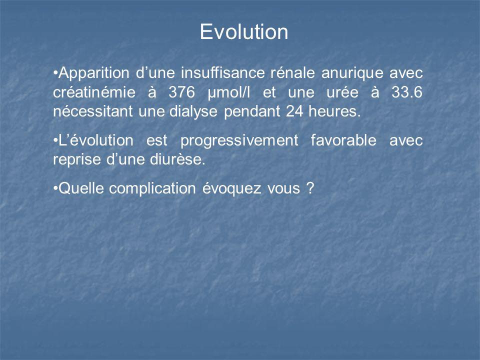 Evolution Apparition dune insuffisance rénale anurique avec créatinémie à 376 µmol/l et une urée à 33.6 nécessitant une dialyse pendant 24 heures. Lév