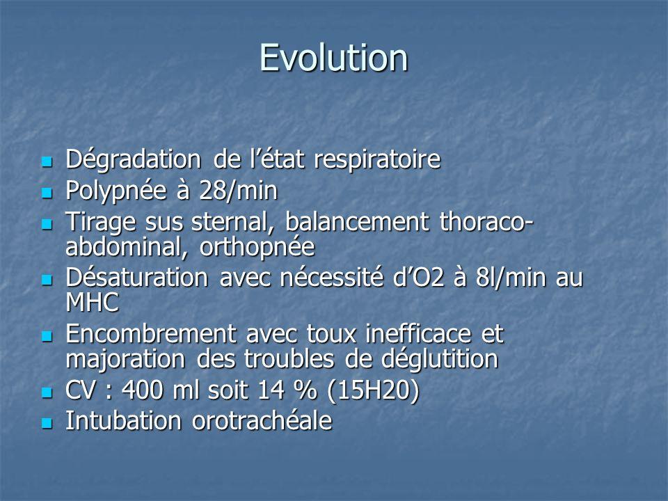 Evolution Dégradation de létat respiratoire Dégradation de létat respiratoire Polypnée à 28/min Polypnée à 28/min Tirage sus sternal, balancement thoraco- abdominal, orthopnée Tirage sus sternal, balancement thoraco- abdominal, orthopnée Désaturation avec nécessité dO2 à 8l/min au MHC Désaturation avec nécessité dO2 à 8l/min au MHC Encombrement avec toux inefficace et majoration des troubles de déglutition Encombrement avec toux inefficace et majoration des troubles de déglutition CV : 400 ml soit 14 % (15H20) CV : 400 ml soit 14 % (15H20) Intubation orotrachéale Intubation orotrachéale