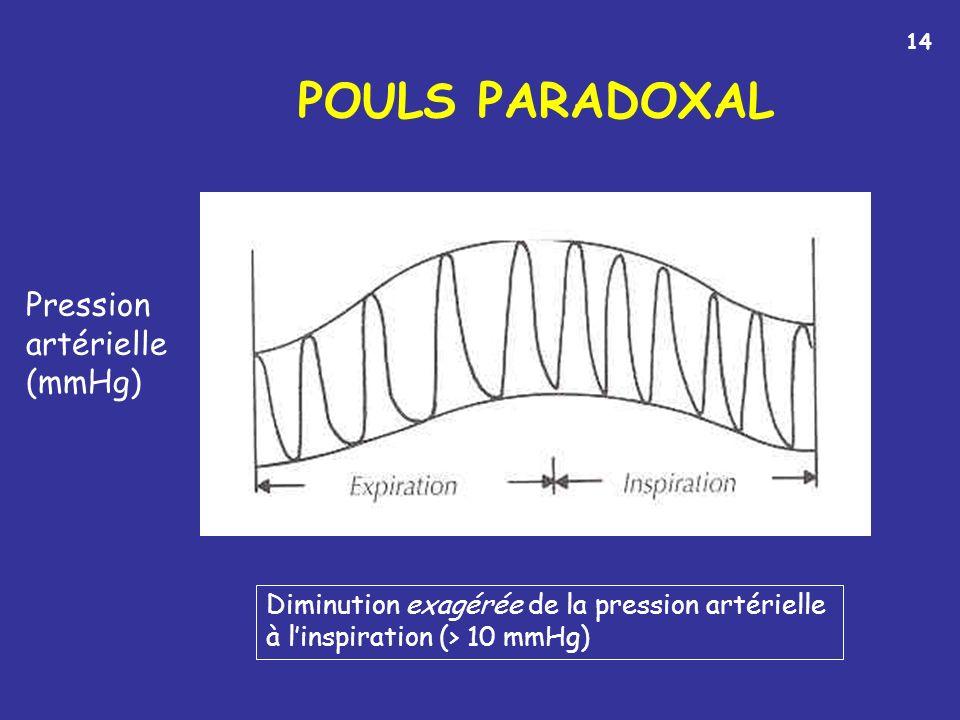 POULS PARADOXAL Diminution exagérée de la pression artérielle à linspiration (> 10 mmHg) Pression artérielle (mmHg) 14