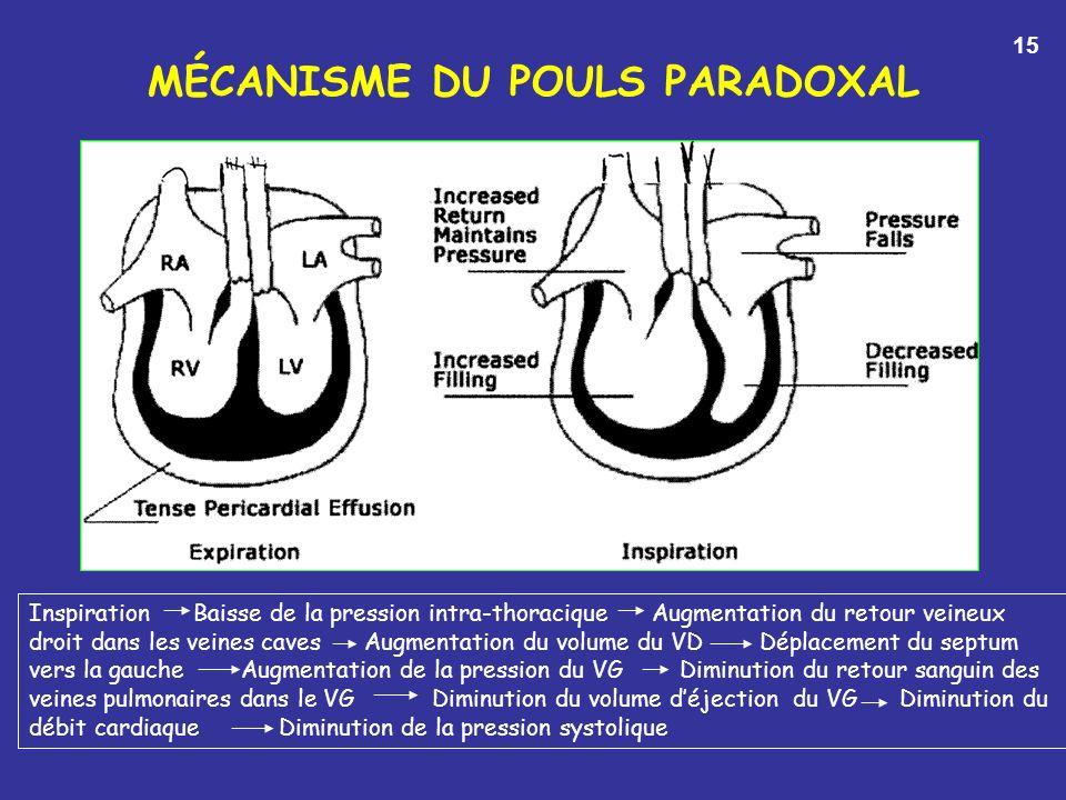 MÉCANISME DU POULS PARADOXAL Inspiration Baisse de la pression intra-thoracique Augmentation du retour veineux droit dans les veines caves Augmentation du volume du VD Déplacement du septum vers la gauche Augmentation de la pression du VG Diminution du retour sanguin des veines pulmonaires dans le VG Diminution du volume déjection du VG Diminution du débit cardiaque Diminution de la pression systolique 15