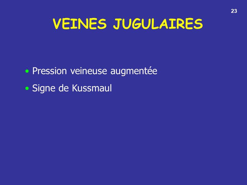 VEINES JUGULAIRES 23 Pression veineuse augmentée Signe de Kussmaul