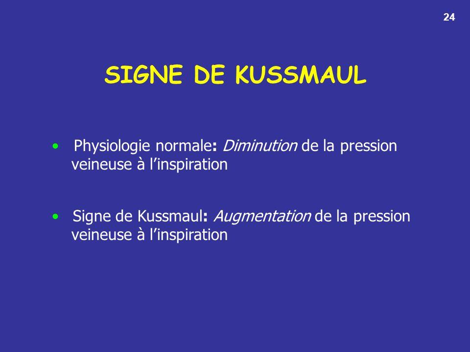 SIGNE DE KUSSMAUL Physiologie normale: Diminution de la pression veineuse à linspiration Signe de Kussmaul: Augmentation de la pression veineuse à linspiration 24