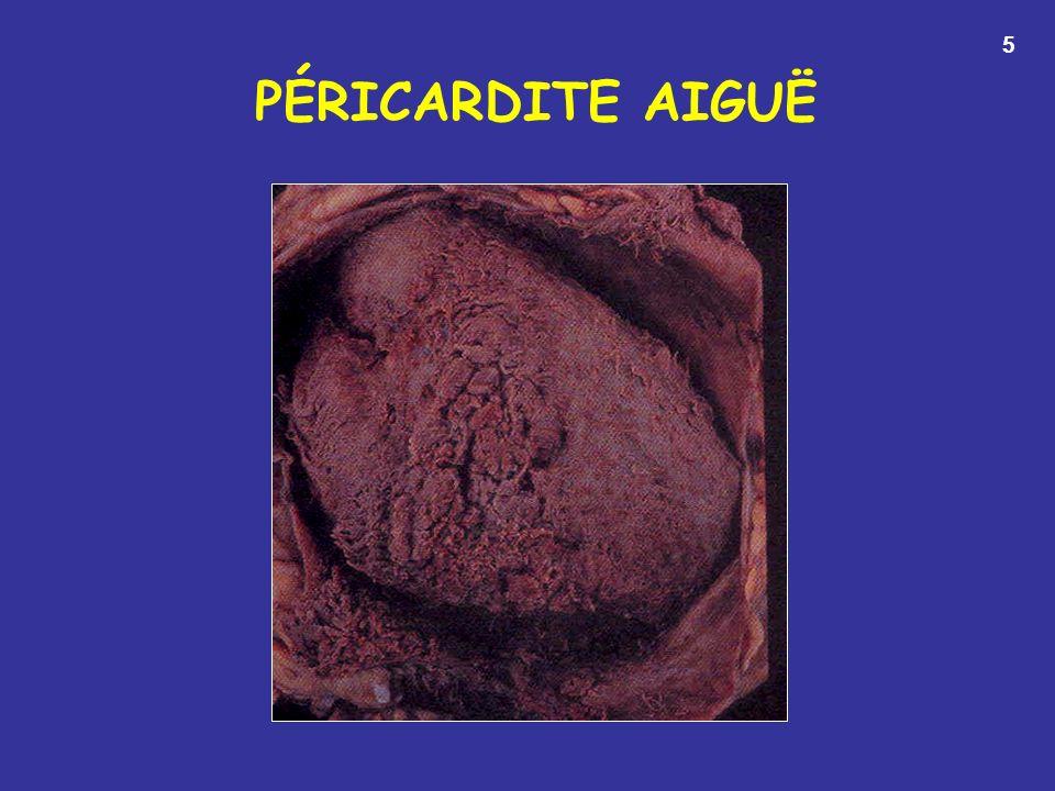 PÉRICARDITE AIGUË 5