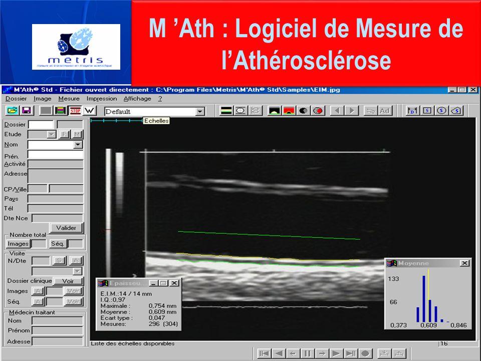 M Ath : Logiciel de Mesure de lAthérosclérose
