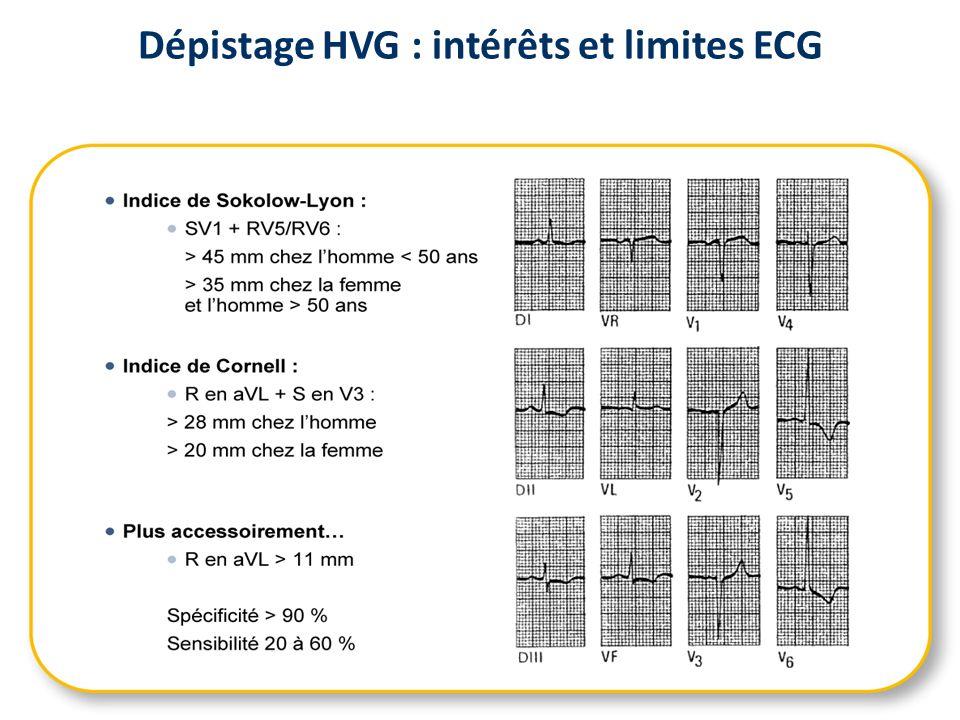 Fréquence de lHVG au cours de lHTA : données échographiques LEVY D et al.