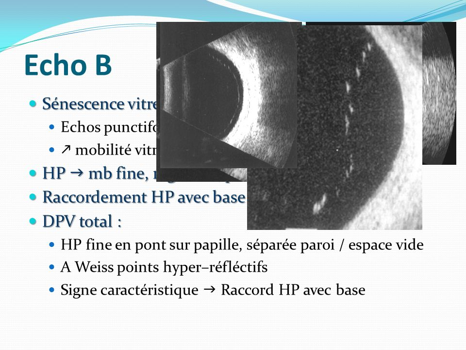 Echo B Sénescence vitré : Sénescence vitré : Echos punctiformes mobilité vitré HP mb fine, régulière, peu échogène HP mb fine, régulière, peu échogène Raccordement HP avec base recherché Raccordement HP avec base recherché DPV total : DPV total : HP fine en pont sur papille, séparée paroi / espace vide A Weiss points hyper–réfléctifs Signe caractéristique Raccord HP avec base
