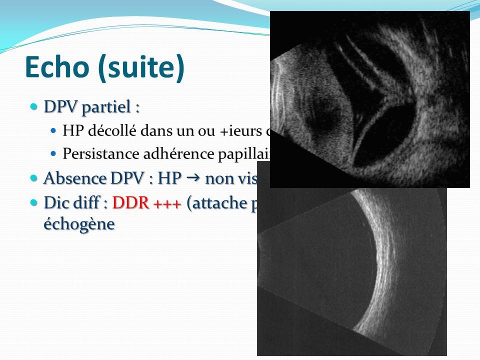 Echo (suite) DPV partiel : DPV partiel : HP décollé dans un ou +ieurs quadrants Persistance adhérence papillaires ou VR au PP Absence DPV : HP non vis