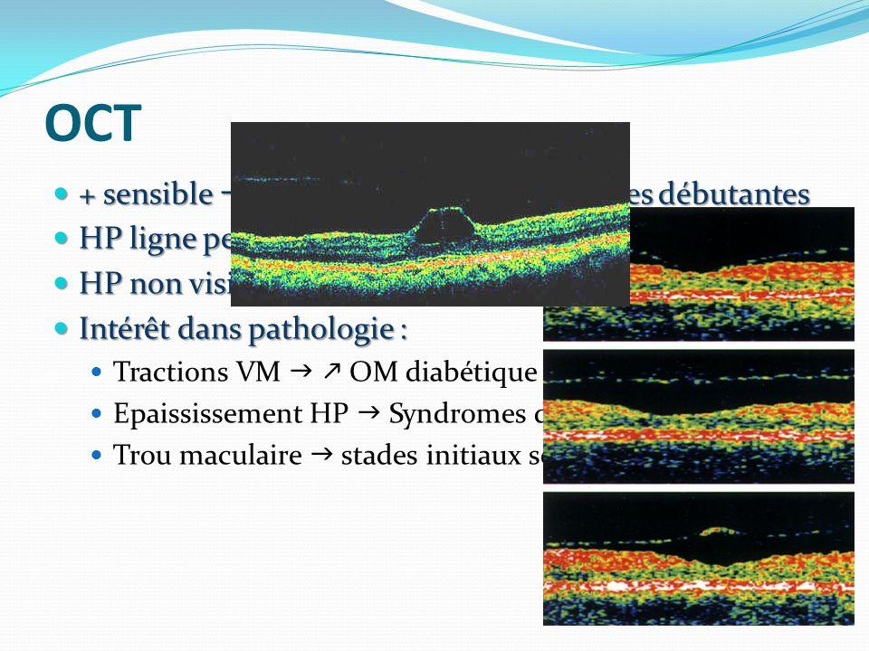 OCT + sensible séparations vitréo-maculaires débutantes + sensible séparations vitréo-maculaires débutantes HP ligne peu réflective (qlq µ) HP ligne peu réflective (qlq µ) HP non visible si accolée ou DPV total (D > 2 mm) HP non visible si accolée ou DPV total (D > 2 mm) Intérêt dans pathologie : Intérêt dans pathologie : Tractions VM OM diabétique Epaississement HP Syndromes de traction VM Trou maculaire stades initiaux séparation VM